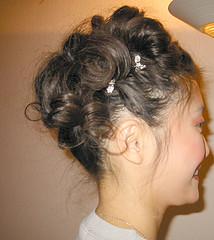 Αιτίες Απώλειας Μαλλιών - hairsurgery.gr