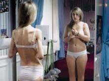 neurikh anorexia