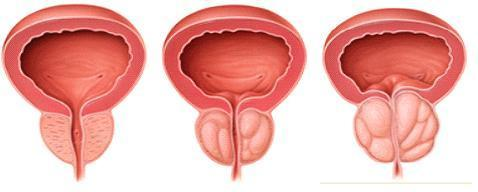 prostatis ypeplasia1