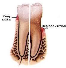 periodontitida