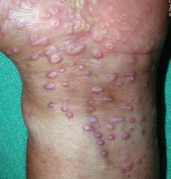derma leixhnas 4