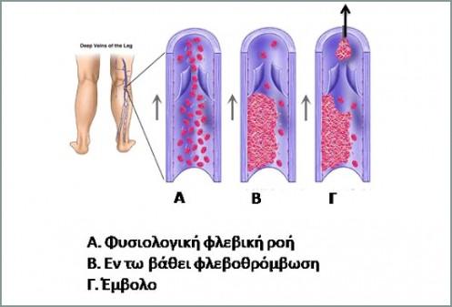 Εν τω βάθει φλεβοθρόμβωση  Συμπτώματα και αντιμετώπιση baf4f1dd098