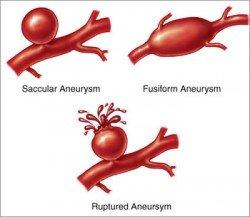 aneurysmata