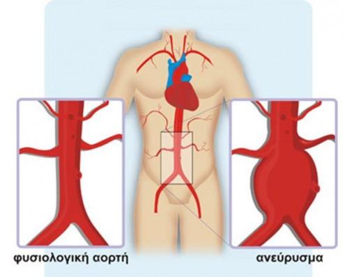 aneyrysma