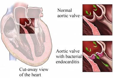 endokarditida3