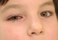 63494bc743 Πρόκειται για το κοκκινισμα του ματιού που μπορεί να οφείλεται σε μόλυνση ή  αλλεργία.
