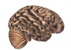 Alzheimer-s