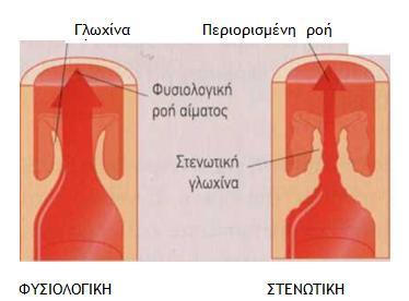 gloxina1