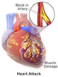 heart attack 2014