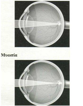 myopia 4