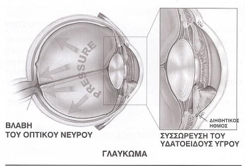5c7205b5bd Χρόνιο και οξύ γλαύκωμα  Συμπτώματα και θεραπεία