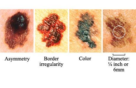 melanoma abcd