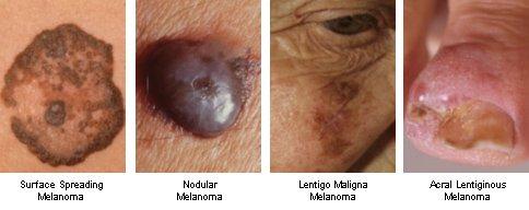 melanoma types