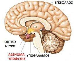 adnoma ypofyshs