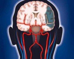 egkefaliko stroke 4
