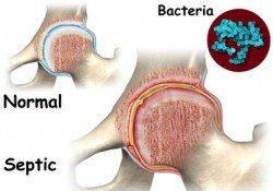 shpptikh arthritida 4