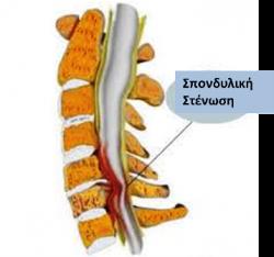 stenosh psondylikh 4