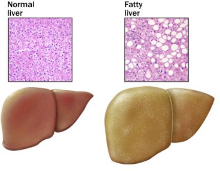 fatty liver 4 froustozh