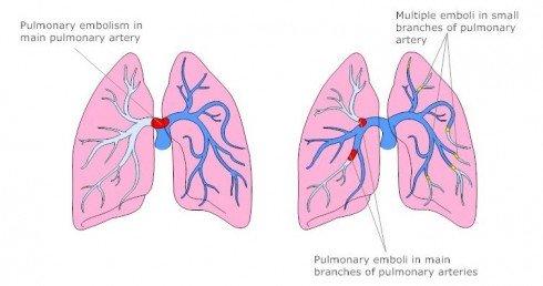 pneumonikh embollh 4