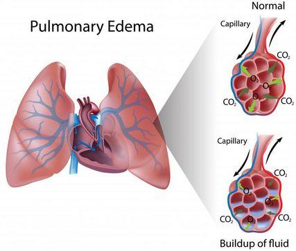 pneumoniko oidhma 4