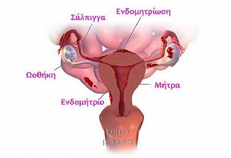 endomitriosis 55