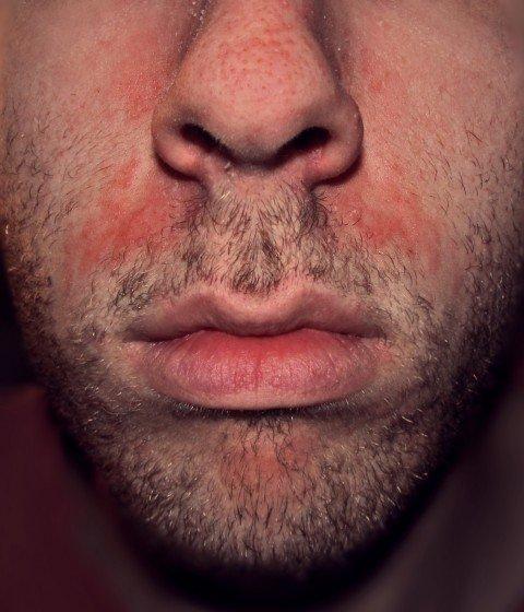 Seborrho555_dermatitis_highres