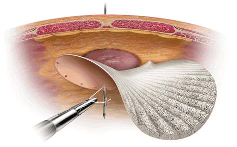 lap-incis555ional-hernia