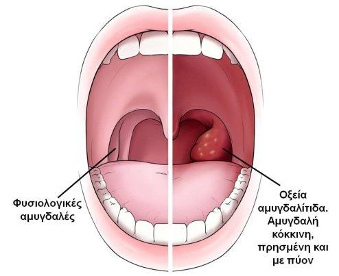 amygdalitida5