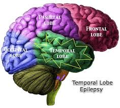 im55555temporal lobe ages