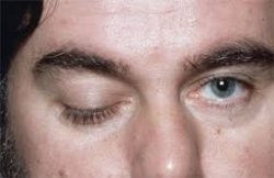 myasthensia graviss 55
