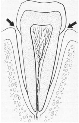 periodontitida5