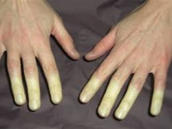 raynaud fainomeno5