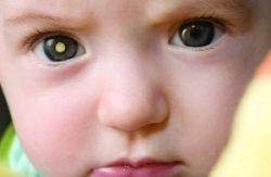 retinoblastoma56
