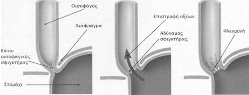 gastrooisofakikh palindromhsh 5