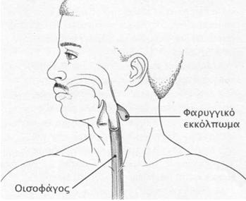 kataposh 5