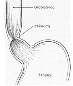 stenosh oisofagou 5