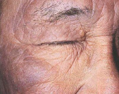 xronia aktinikh dermatitida