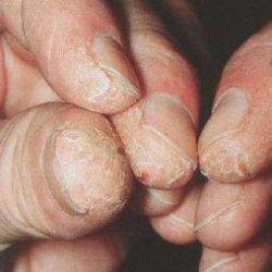 dermatitid louloudia