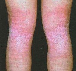 paidi dermatitida 5