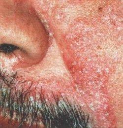 seborrheic dermatitis5