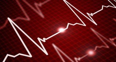 kardiakos rythmos