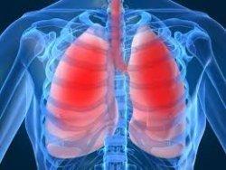 cystic fibrosis 6