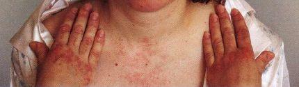 dermatomyesitida