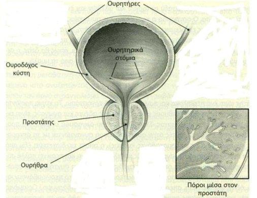 prostatis2
