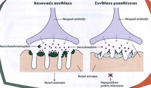 myoastheneia