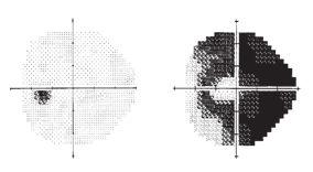 c33e2cd98d Εξέταση οπτικών πεδίων  Τι είναι και πως γίνεται